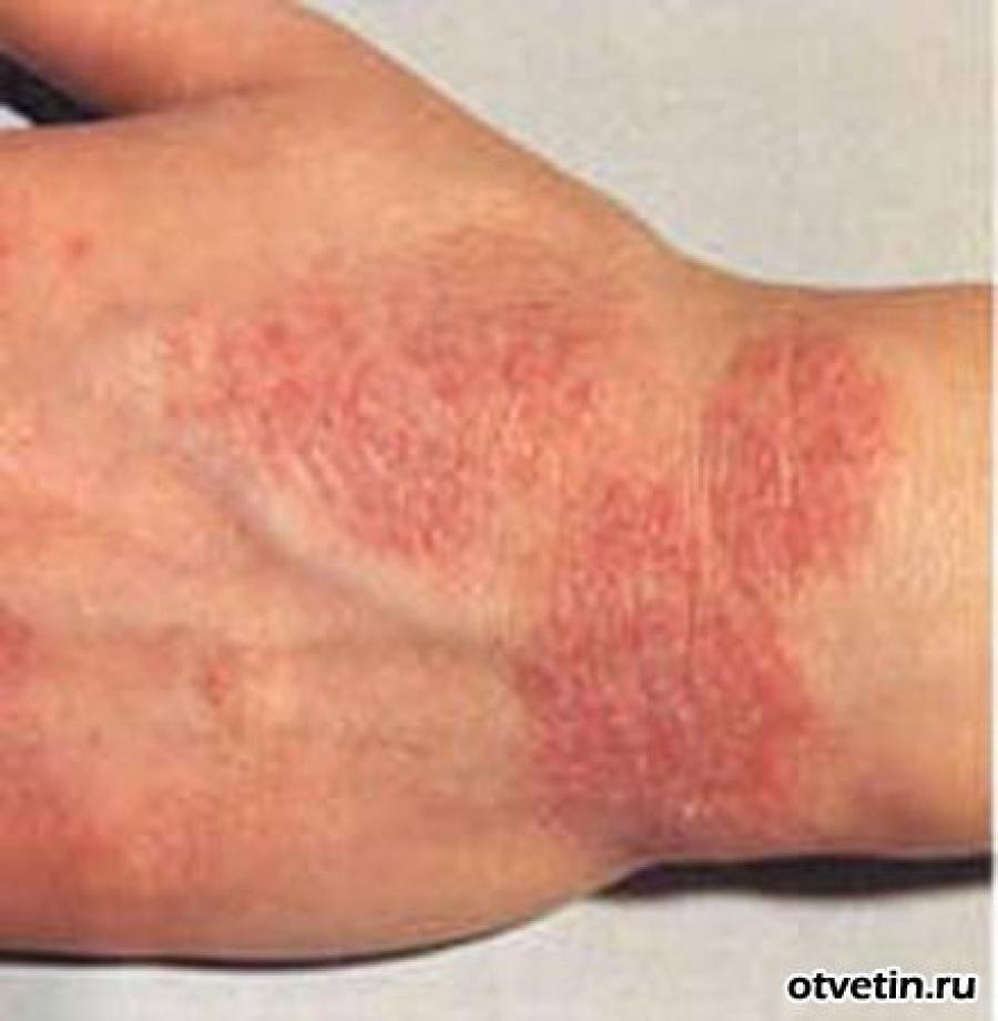 потница или аллергия как отличить фото