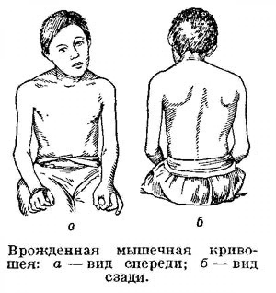 Кризотерапия